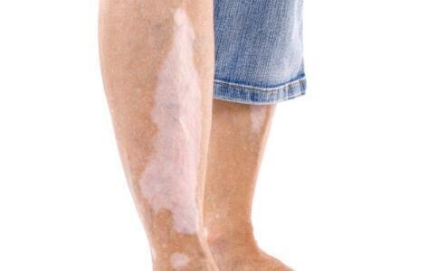 腿上长白斑是因为什么